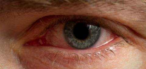 Allergic Conjunctivitis Causes, Symptoms and Treatment