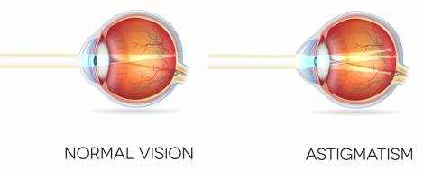 Astigmatism Definition, Types and Correction Options