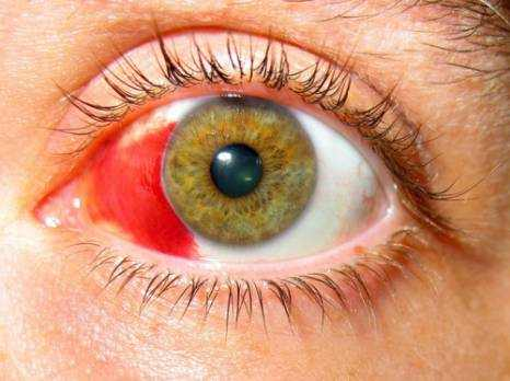 Broken (Popped) Blood Vessels in Eyes Causes, Symptoms and Treatment