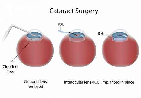 Cataract Surgery Recovery Time and Care Tips