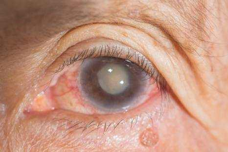 Cataracts Definition, Causes, Symptoms and Treatment