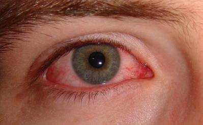 Conjunctivitis (Pink Eye) Symptoms, Causes and Treatment