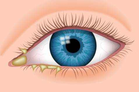 Eye Discharge (Cold in the Eye) Causes, Symptoms and Treatment