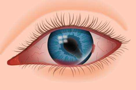 Eye and Eyeball Injuries Types and Remedies