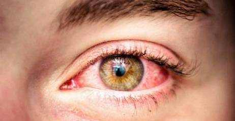 Eyes Itching Causes, Symptoms and Treatment