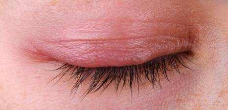 Inflammation of the Eyelid (Blepharitis) Causes and Treatment