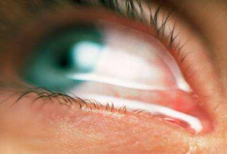 Itchy Watery Eyes Causes, Symptoms and Treatment