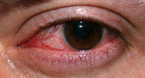 Red Eyes Symptoms, Causes and Treatment