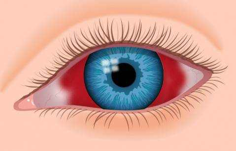 Subconjunctival Hemorrhage (Blood in Eyeball)