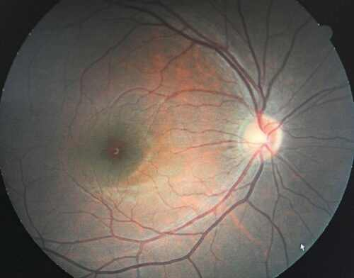 Macular Degeneration Treatments