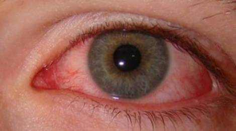 pink eye early symptoms