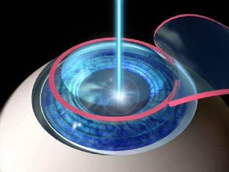 LASIK Procedure How Is Laser Eye Surgery Done