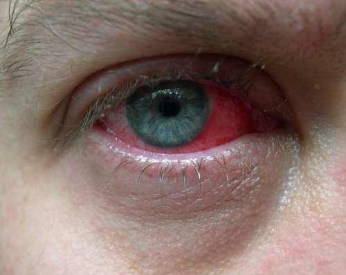 Photo of Pink Eye in men