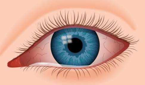Types of Conjunctivitis