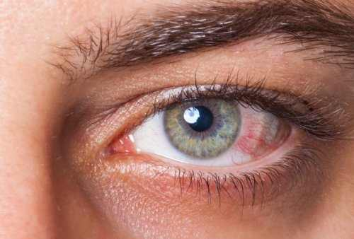 Causes of Dry Eyes in the Morning
