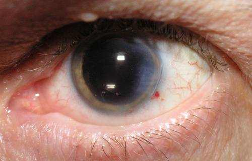eye on glaucoma