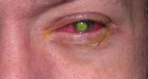 What Happens If You Leave Contacts In Too Long Or Sleeping -1292