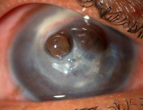 fungal eye infection picture