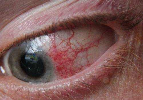 Fungal Eye Infection From Contacts