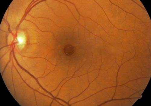 Macular Holes: Repair and Surgery