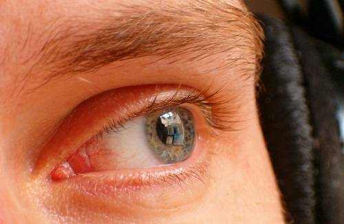 What Causes Protein Buildup in Eyes