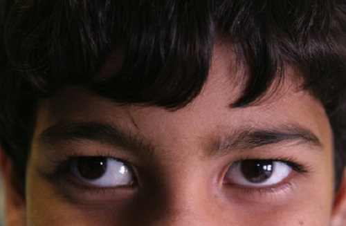 Strabismus And Crossed Eyes