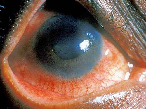 Uveitis, Eye Inflammation: Causes and Treatment