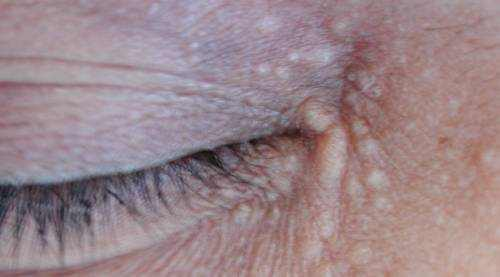 how to remove warts from eyelids