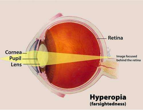 what is hyperopia