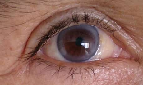 Old lady with blue ring around brown iris