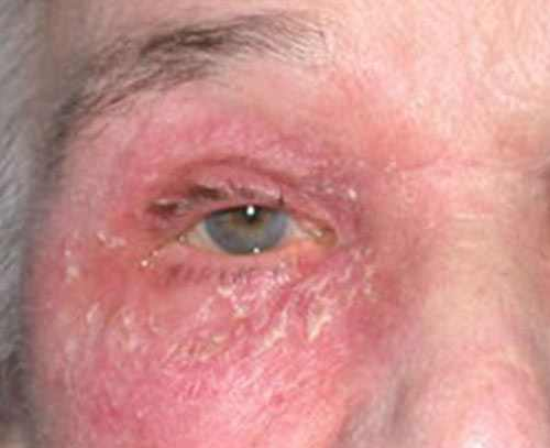 image of red itchy eyelid