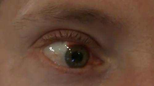 busted blood vessel in eye