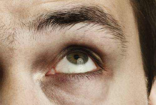 How Do I Relieve Tired Eyes?