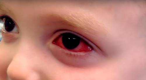 Signs and Symptoms of Pinkeye in Toddlers