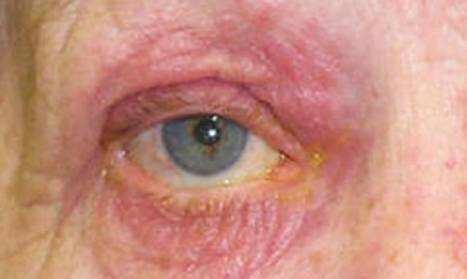 ocular rosacea home remedies