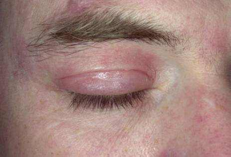 eczema on eyelid in Man