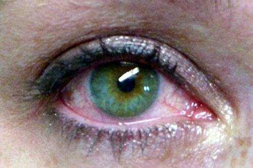 what causes watery eyes