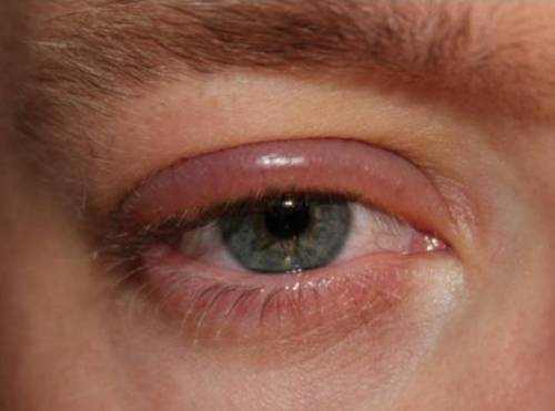 Blepharitis home remedies