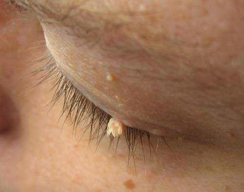 Skin tag on woman's eyelid