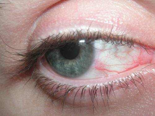 Red Veins in Eye
