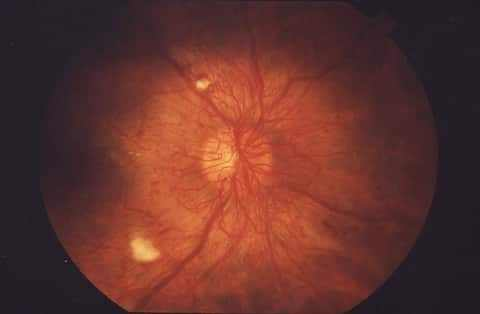 image of Proliferative Diabetic Retinopathy