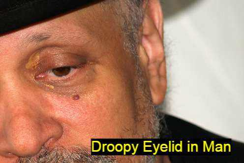 Droopy Eyelid