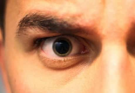 Man with dilated eye pupil