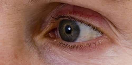 Mucus in eyes