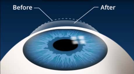LASEK eye surgery: pricing and benefits