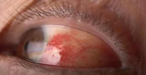 How Do You Get Rid of Red Itchy Eyes